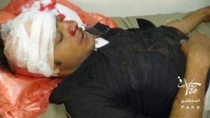 وزارة حقوق الانسان تطالب المجتمع الدولي بتحمل مسئولياته إزاء ما يحدث من جرائم بحق ابناء تعز